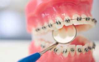 Если в стоматологии сделали плохо работу, то что делать?